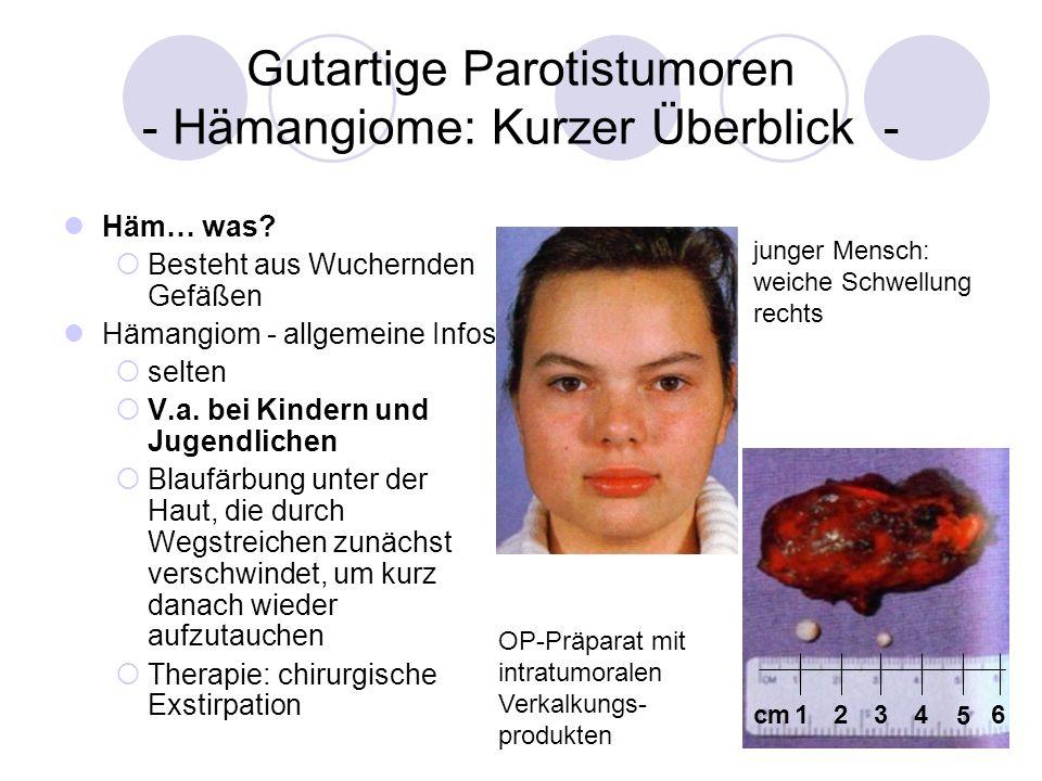 Gutartige Parotistumoren - Hämangiome: Kurzer Überblick - Häm… was? Besteht aus Wuchernden Gefäßen Hämangiom - allgemeine Infos selten V.a. bei Kinder