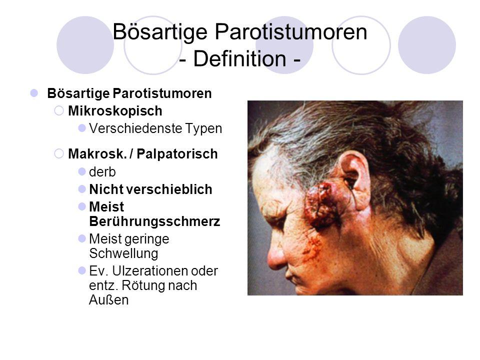 Bösartige Parotistumoren - Definition - Bösartige Parotistumoren Mikroskopisch Verschiedenste Typen Makrosk. / Palpatorisch derb Nicht verschieblich M