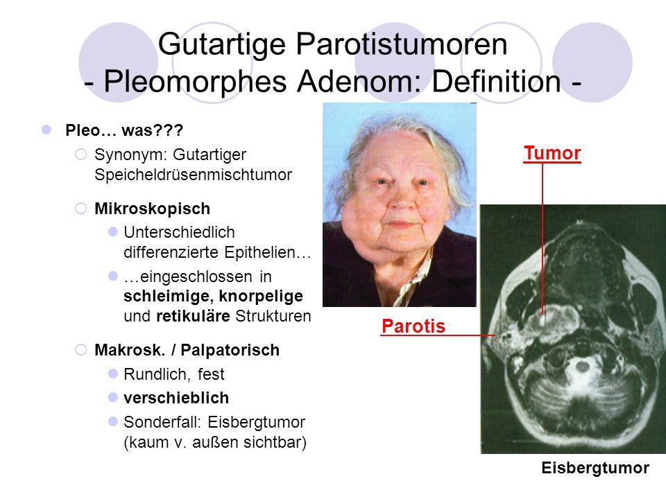 Gutartige Parotistumoren - Pleomorphes Adenom: Definition - Pleo… was??? Synonym: Gutartiger Speicheldrüsenmischtumor Mikroskopisch Unterschiedlich di
