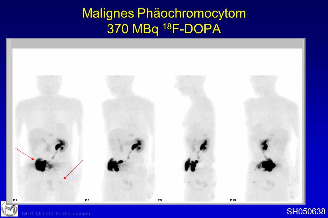 Malignes Phäochromocytom 370 MBq 18 F-DOPA SH050638