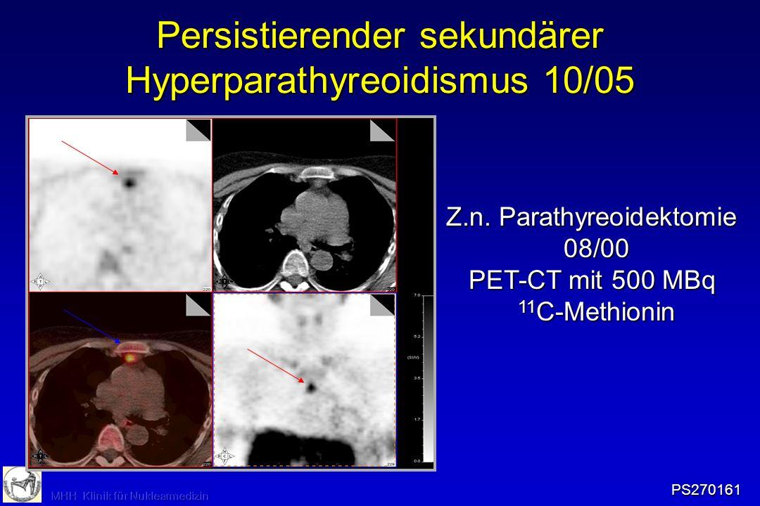 Persistierender sekundärer Hyperparathyreoidismus 10/05 Z.n. Parathyreoidektomie 08/00 PET-CT mit 500 MBq 11 C-Methionin PS270161