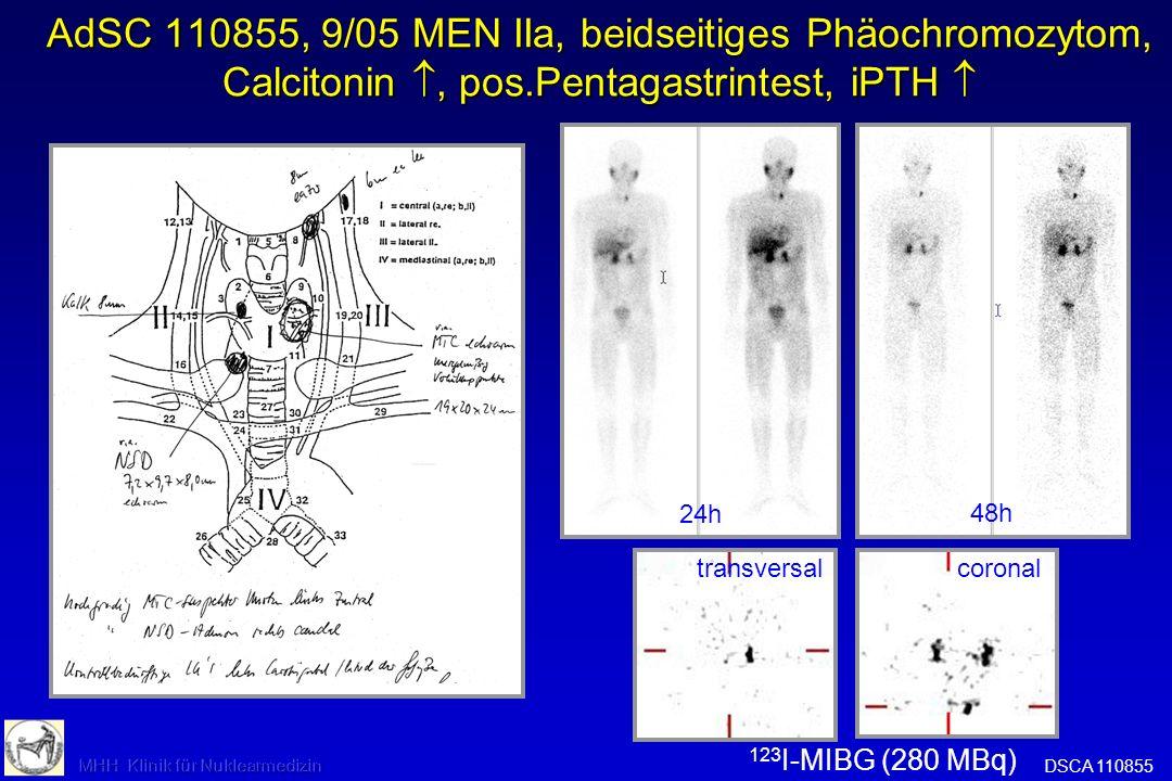 AdSC 110855, 9/05 MEN IIa, beidseitiges Phäochromocytom + MTC nachgewiesen AdSC 110855, 9/05 MEN IIa, beidseitiges Phäochromocytom + MTC nachgewiesen Frage: Metastasen.