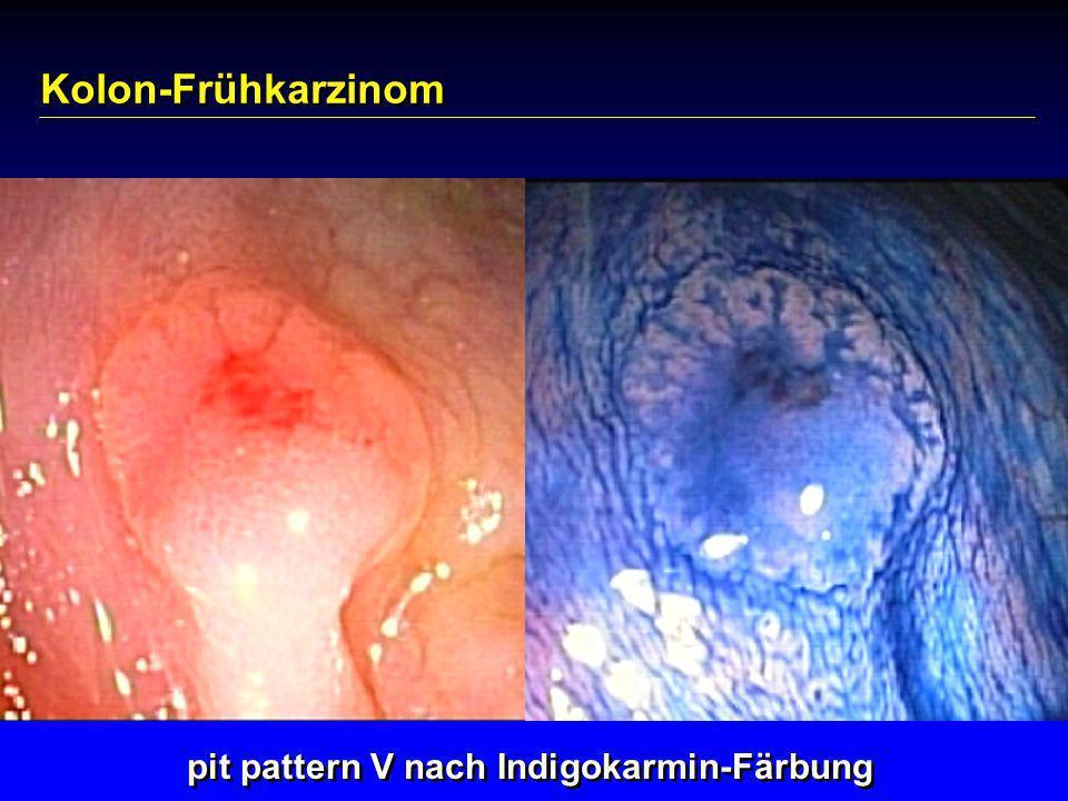 Kolon-Frühkarzinom pit pattern V nach Indigokarmin-Färbung