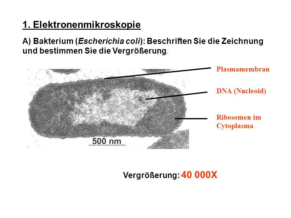 1. Elektronenmikroskopie A) Bakterium (Escherichia coli): Beschriften Sie die Zeichnung und bestimmen Sie die Vergrößerung. Vergrößerung: 40 000X Plas