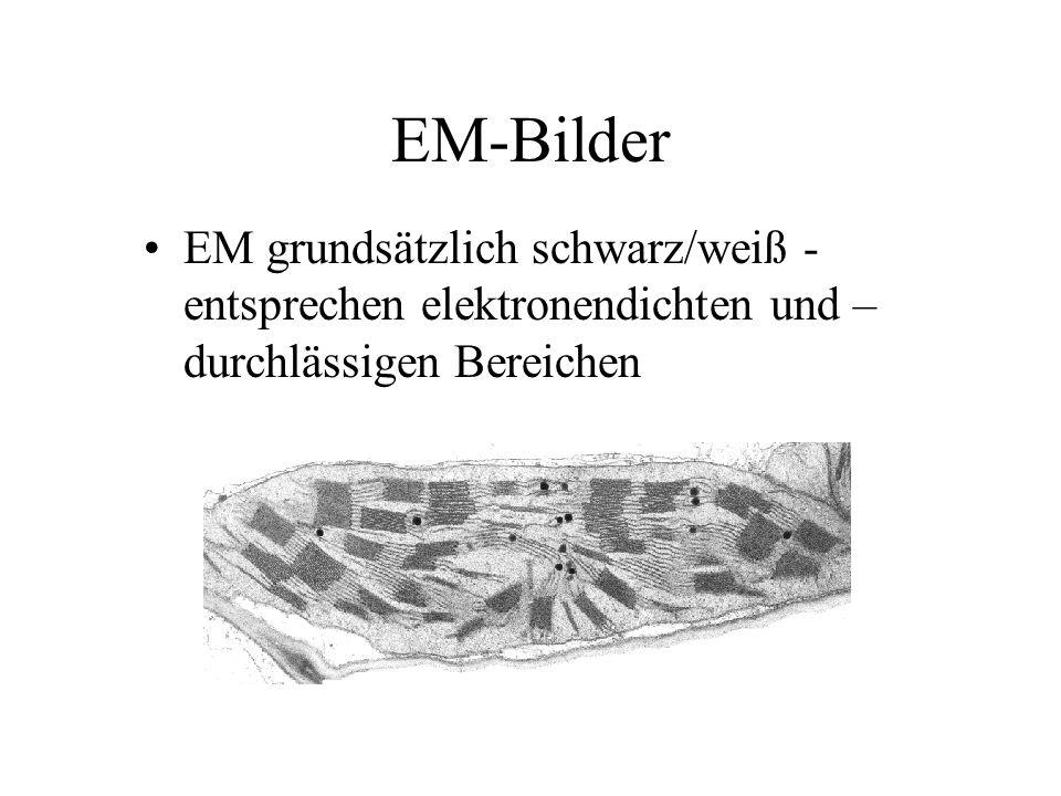 EM-Bilder EM grundsätzlich schwarz/weiß - entsprechen elektronendichten und – durchlässigen Bereichen