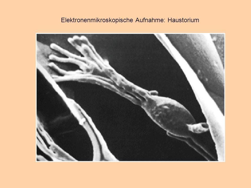 Hemibiotrophe Pilze: Übergang biotroph zu nekrotroph, meist durch höhere Ansprüche des gewachsenen Pilzes bedingt.