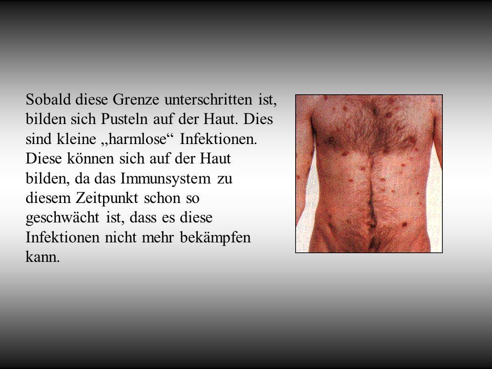 Sobald diese Grenze unterschritten ist, bilden sich Pusteln auf der Haut. Dies sind kleine harmlose Infektionen. Diese können sich auf der Haut bilden