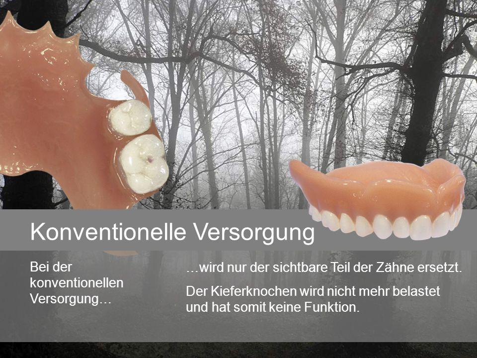 Konventionelle Versorgung …wird nur der sichtbare Teil der Zähne ersetzt. Der Kieferknochen wird nicht mehr belastet und hat somit keine Funktion. Bei