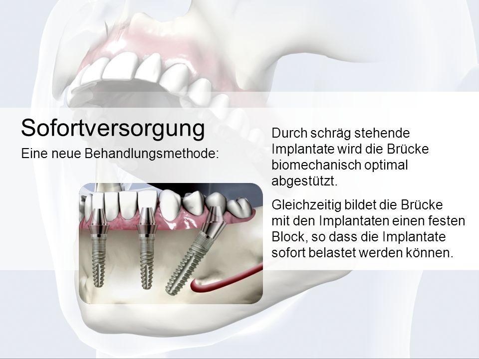Sofortversorgung Durch schräg stehende Implantate wird die Brücke biomechanisch optimal abgestützt. Gleichzeitig bildet die Brücke mit den Implantaten