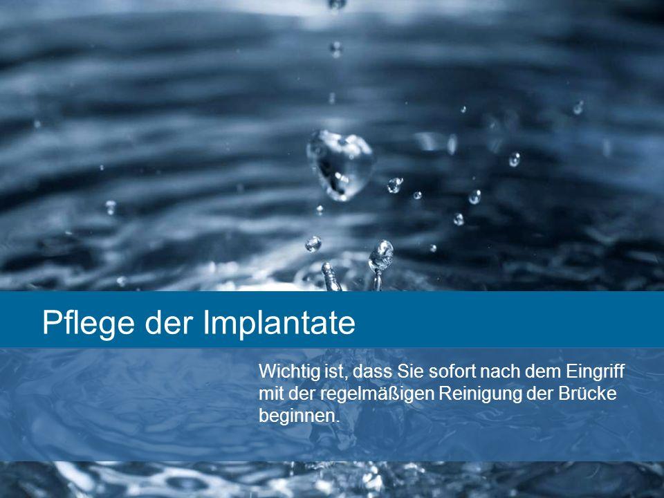 Pflege der Implantate Wichtig ist, dass Sie sofort nach dem Eingriff mit der regelmäßigen Reinigung der Brücke beginnen. Ferner sollten Sie regelmäßig