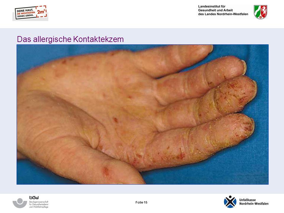 Folie 14 Entwicklung einer allergischen Hautreaktion: Sensibilisierungsphase läuft unmerklich ab Die chemische Substanz des Allergens bindet sich an k