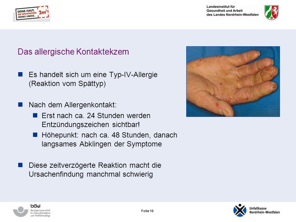 Folie 15 Das allergische Kontaktekzem