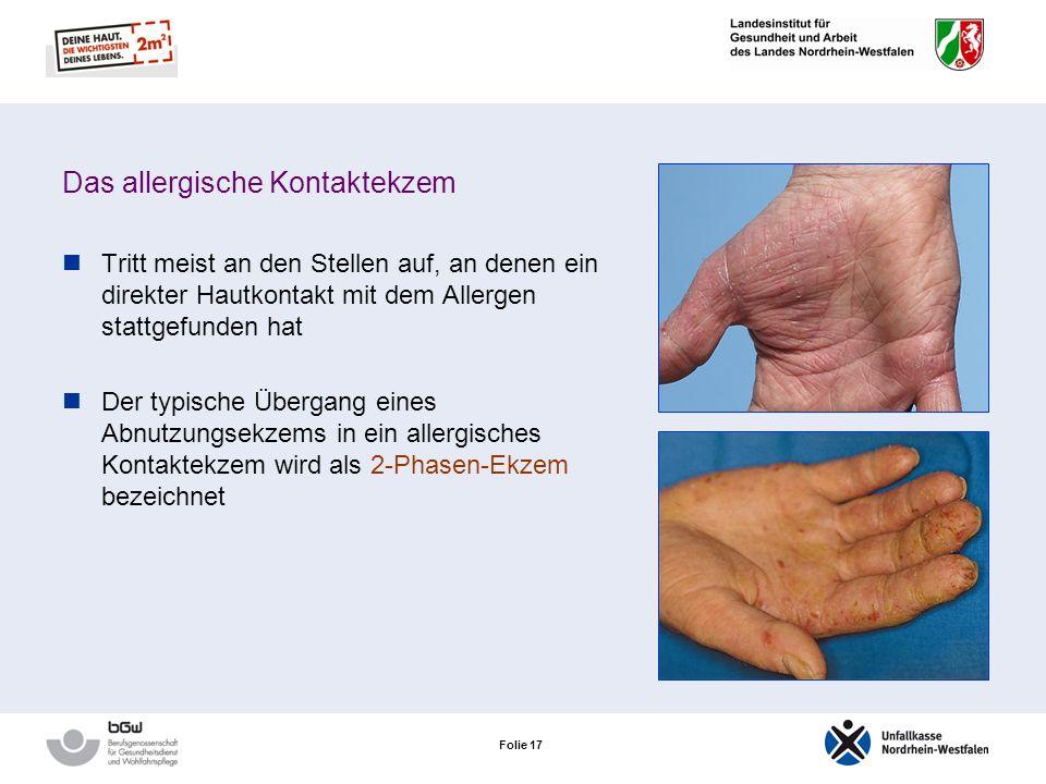 Folie 16 Das allergische Kontaktekzem Es handelt sich um eine Typ-IV-Allergie (Reaktion vom Spättyp) Nach dem Allergenkontakt: Erst nach ca. 24 Stunde