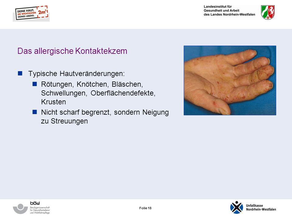 Folie 17 Das allergische Kontaktekzem Tritt meist an den Stellen auf, an denen ein direkter Hautkontakt mit dem Allergen stattgefunden hat Der typisch