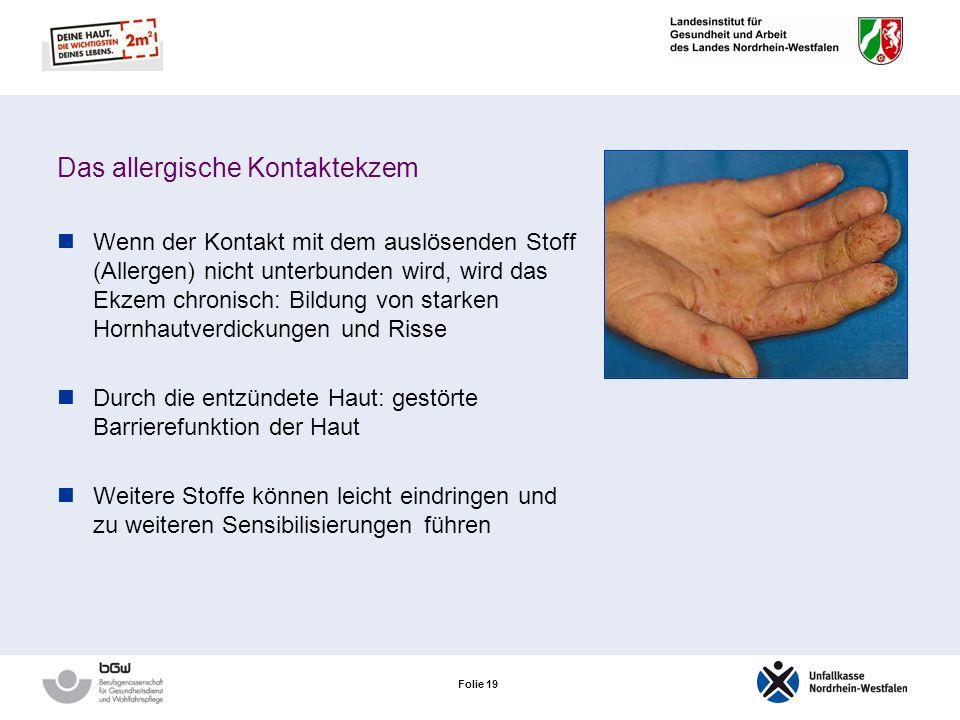 Folie 18 Das allergische Kontaktekzem Typische Hautveränderungen: Rötungen, Knötchen, Bläschen, Schwellungen, Oberflächendefekte, Krusten Nicht scharf