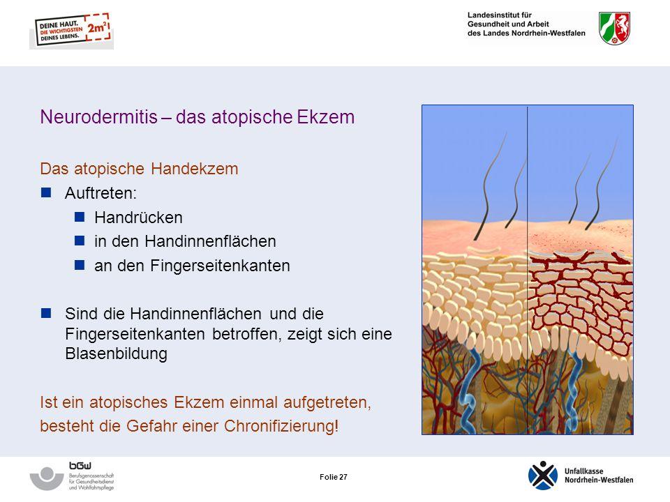 Folie 26 Neurodermitis – das atopische Ekzem Atopiker sind aufgrund der erhöhten Sensibilisierungsgefahr und Störungen der Hautbarriere besonders gefä