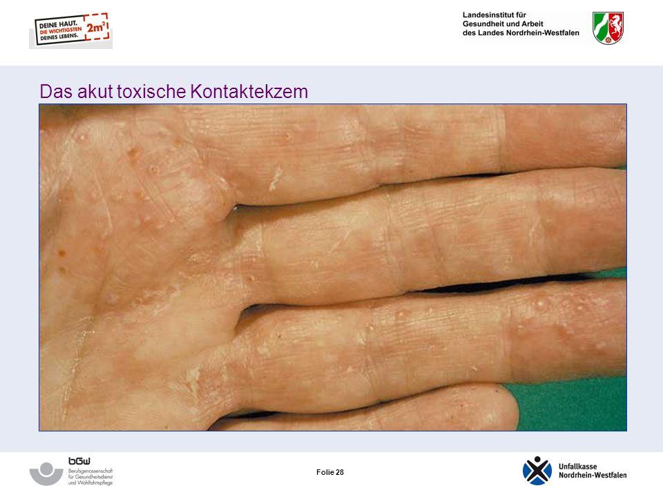 Folie 27 Neurodermitis – das atopische Ekzem Das atopische Handekzem Auftreten: Handrücken in den Handinnenflächen an den Fingerseitenkanten Sind die