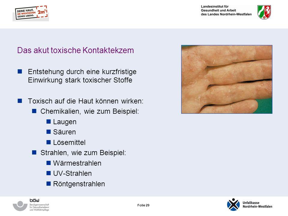 Folie 28 Das akut toxische Kontaktekzem
