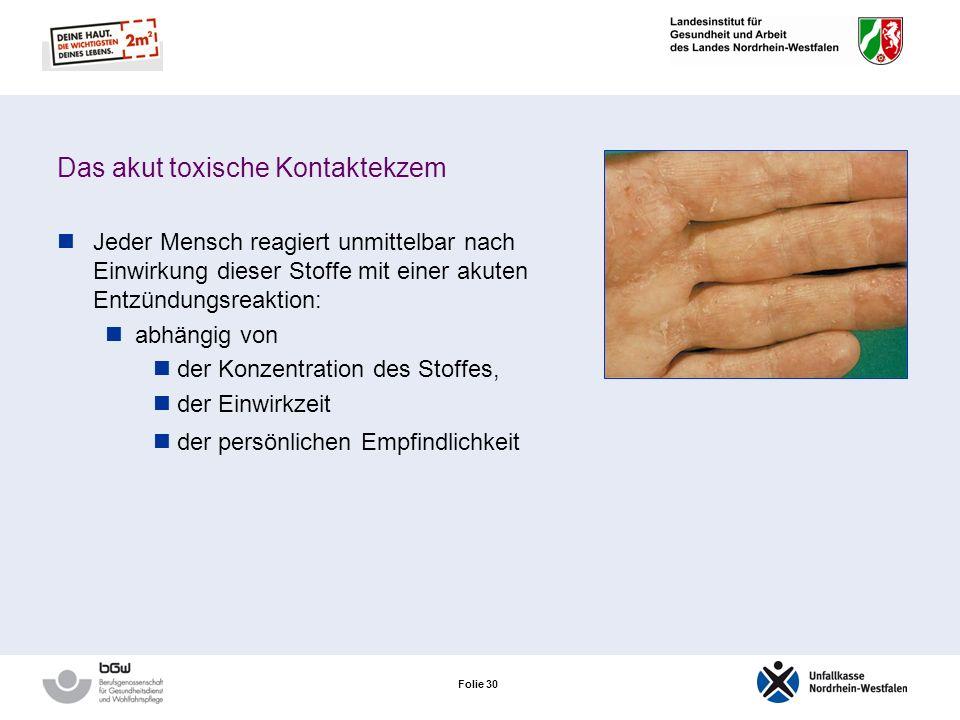 Folie 29 Das akut toxische Kontaktekzem Entstehung durch eine kurzfristige Einwirkung stark toxischer Stoffe Toxisch auf die Haut können wirken: Chemi