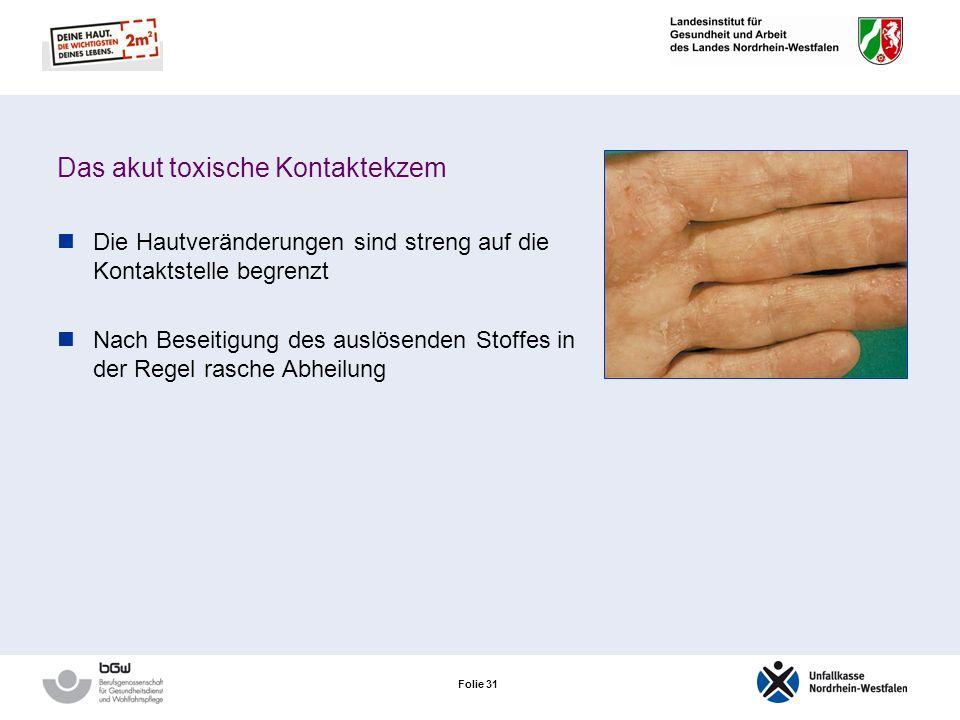 Folie 30 Das akut toxische Kontaktekzem Jeder Mensch reagiert unmittelbar nach Einwirkung dieser Stoffe mit einer akuten Entzündungsreaktion: abhängig