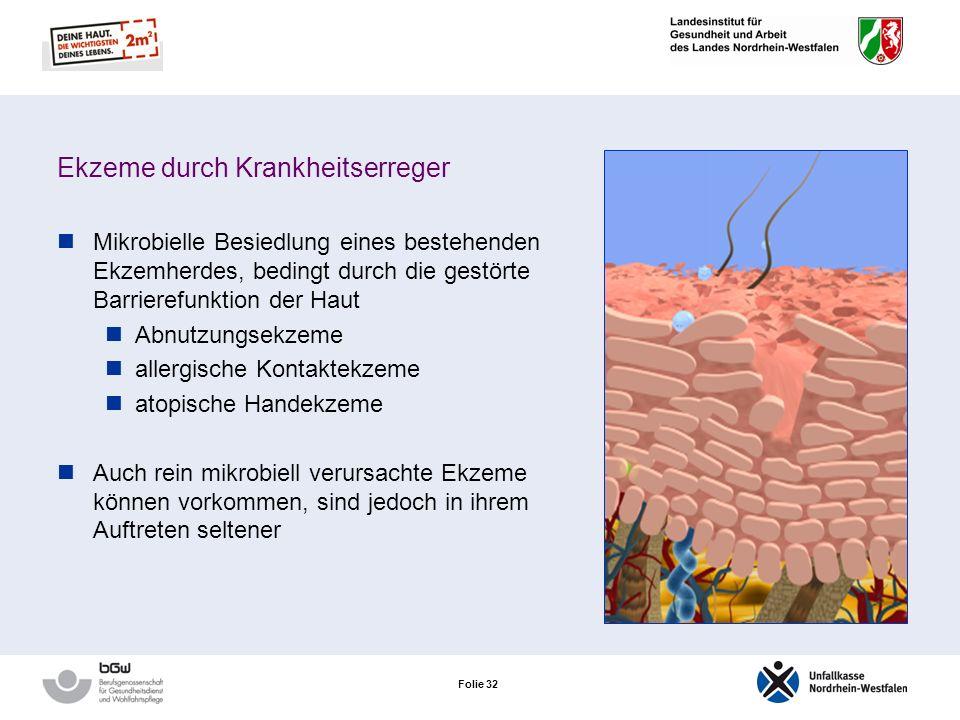 Folie 31 Das akut toxische Kontaktekzem Die Hautveränderungen sind streng auf die Kontaktstelle begrenzt Nach Beseitigung des auslösenden Stoffes in d