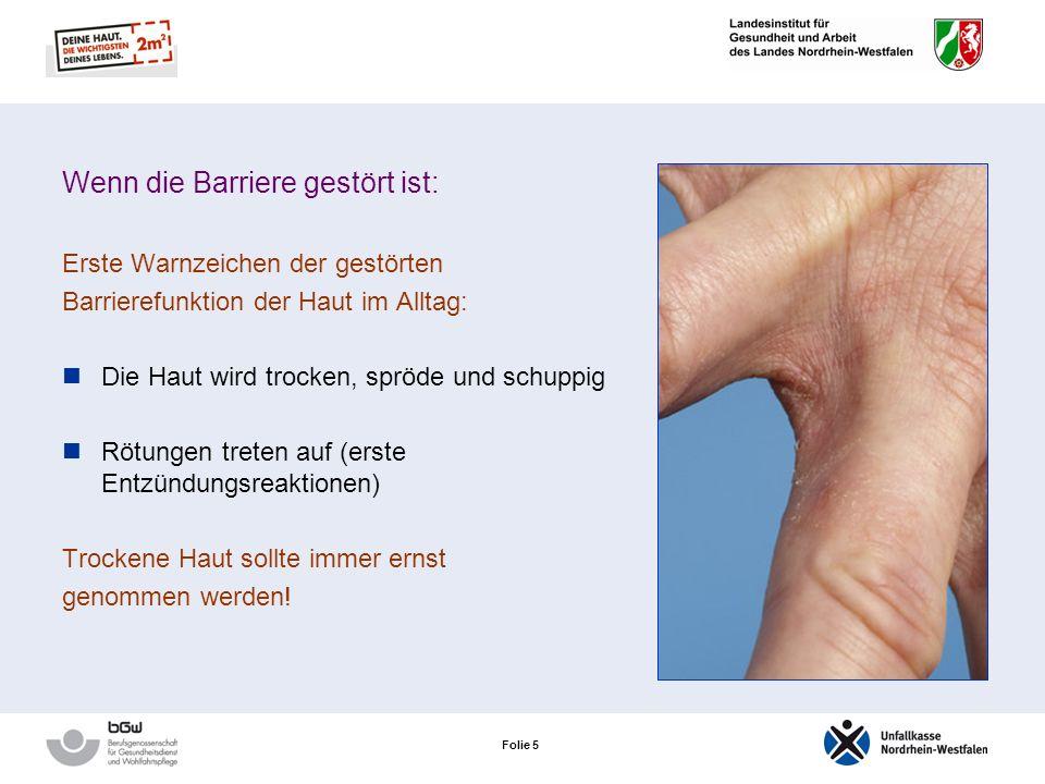 Folie 5 Wenn die Barriere gestört ist: Erste Warnzeichen der gestörten Barrierefunktion der Haut im Alltag: Die Haut wird trocken, spröde und schuppig Rötungen treten auf (erste Entzündungsreaktionen) Trockene Haut sollte immer ernst genommen werden!