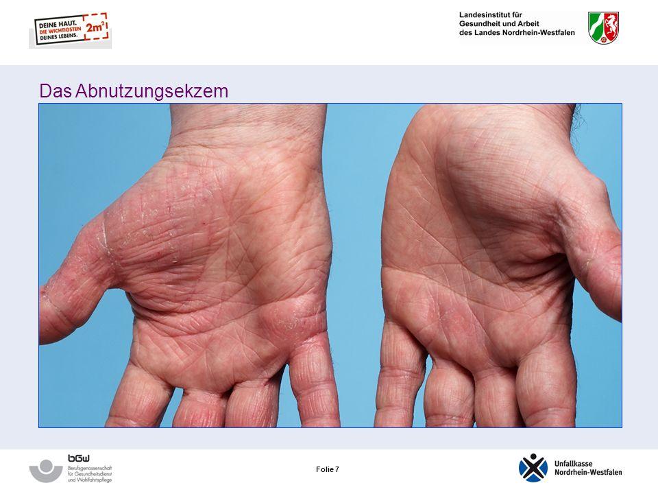 Folie 27 Neurodermitis – das atopische Ekzem Das atopische Handekzem Auftreten: Handrücken in den Handinnenflächen an den Fingerseitenkanten Sind die Handinnenflächen und die Fingerseitenkanten betroffen, zeigt sich eine Blasenbildung Ist ein atopisches Ekzem einmal aufgetreten, besteht die Gefahr einer Chronifizierung!