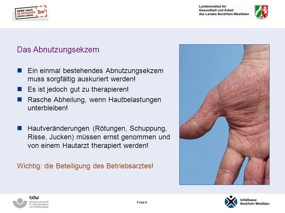 Folie 8 Das Abnutzungsekzem Klinisches Bild einer länger bestehenden gestörten Barrierefunktion der Haut Hauptsymptome: Trockenheit und Rötungen Heilt