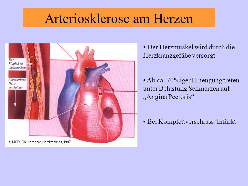 Arteriosklerose am Herzen Der Herzmuskel wird durch die Herzkranzgefäße versorgt Ab ca.