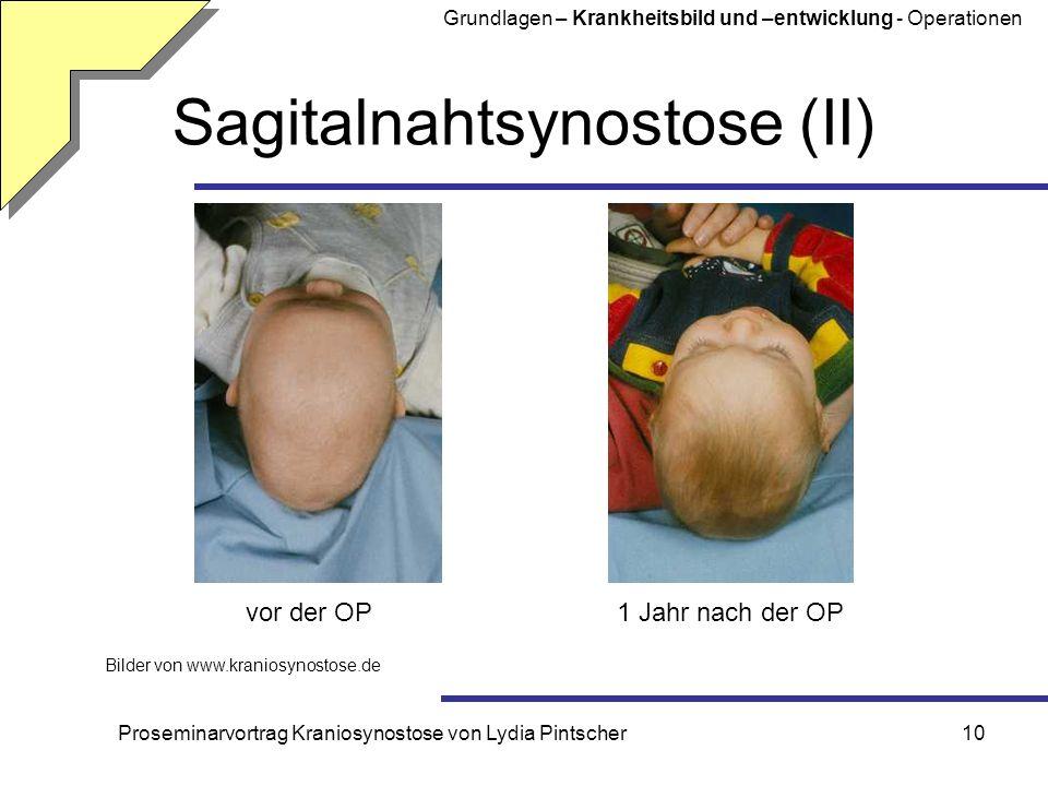 Proseminarvortrag Kraniosynostose von Lydia Pintscher10 Sagitalnahtsynostose (II) Bilder von www.kraniosynostose.de vor der OP1 Jahr nach der OP Grund