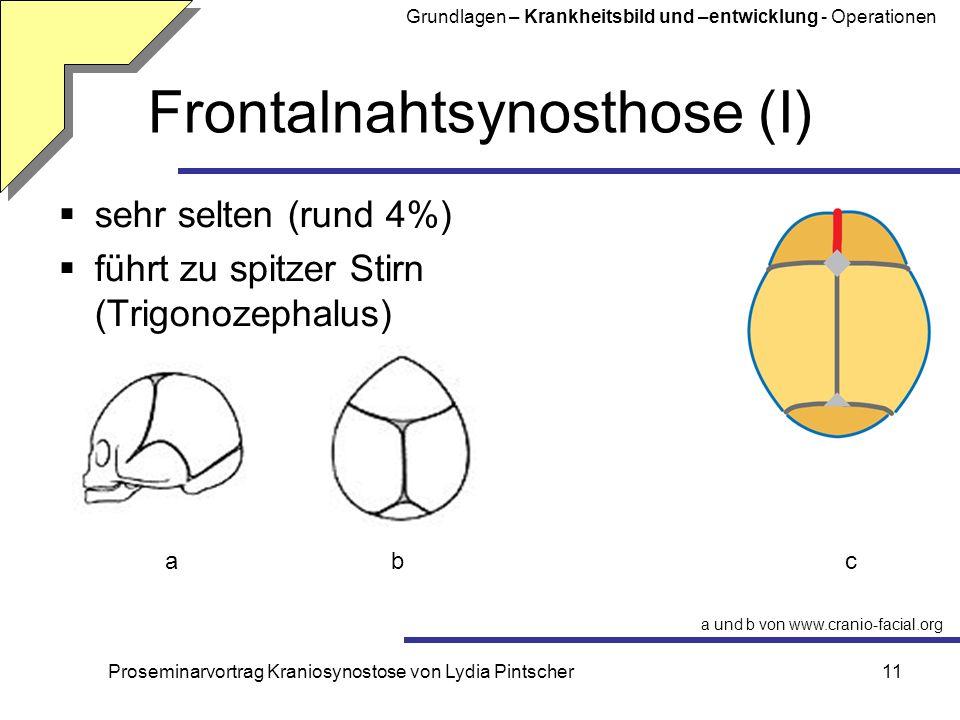Proseminarvortrag Kraniosynostose von Lydia Pintscher11 Frontalnahtsynosthose (I) sehr selten (rund 4%) führt zu spitzer Stirn (Trigonozephalus) a und