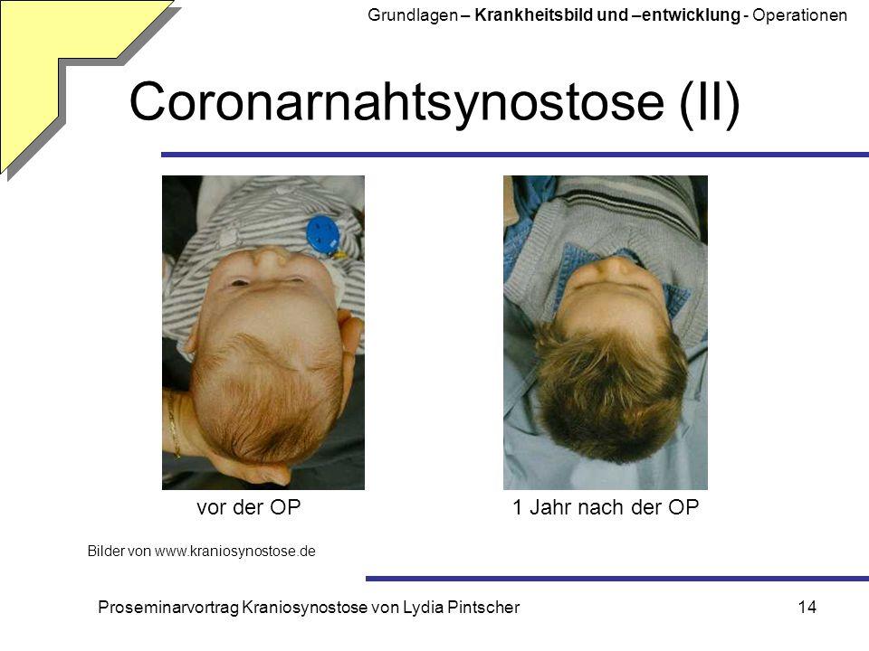 Proseminarvortrag Kraniosynostose von Lydia Pintscher14 Coronarnahtsynostose (II) Bilder von www.kraniosynostose.de vor der OP1 Jahr nach der OP Grund