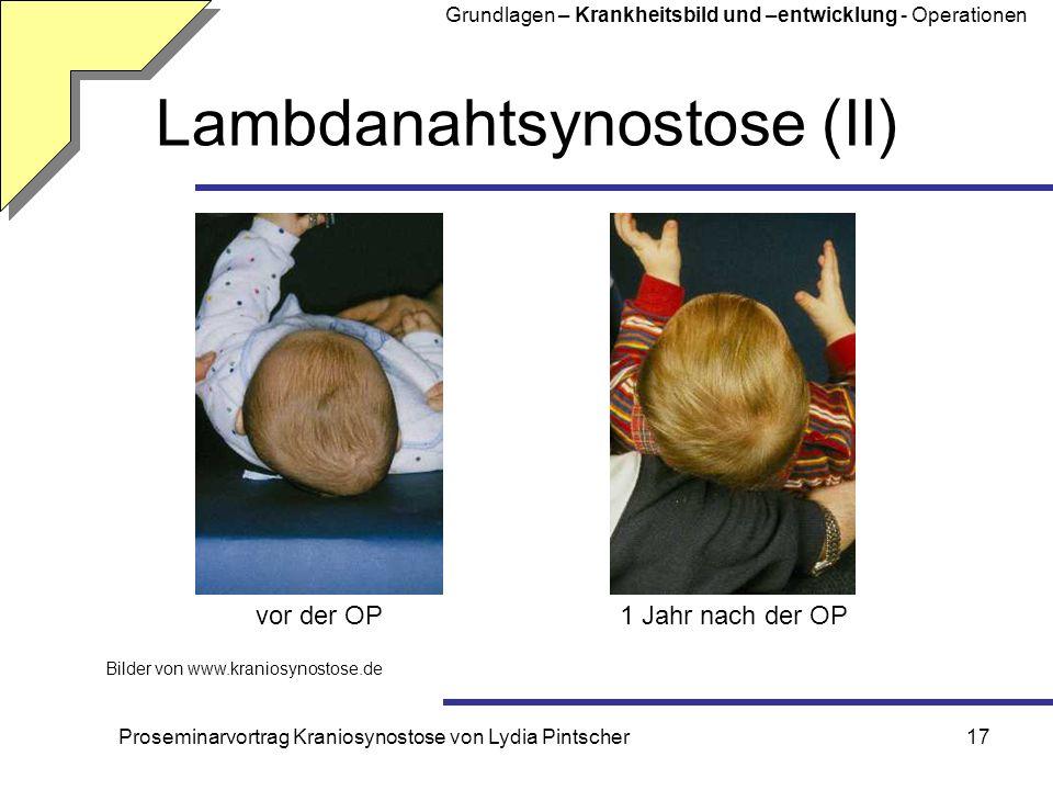 Proseminarvortrag Kraniosynostose von Lydia Pintscher17 Lambdanahtsynostose (II) Bilder von www.kraniosynostose.de vor der OP1 Jahr nach der OP Grundl