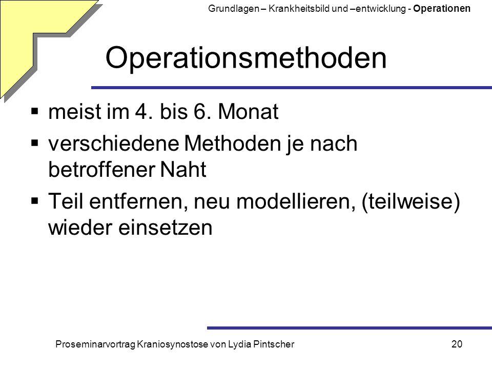 Proseminarvortrag Kraniosynostose von Lydia Pintscher20 Operationsmethoden meist im 4. bis 6. Monat verschiedene Methoden je nach betroffener Naht Tei