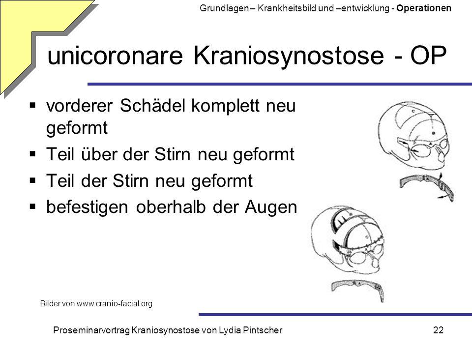Proseminarvortrag Kraniosynostose von Lydia Pintscher22 unicoronare Kraniosynostose - OP vorderer Schädel komplett neu geformt Teil über der Stirn neu