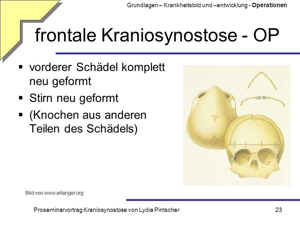 Proseminarvortrag Kraniosynostose von Lydia Pintscher23 frontale Kraniosynostose - OP vorderer Schädel komplett neu geformt Stirn neu geformt (Knochen