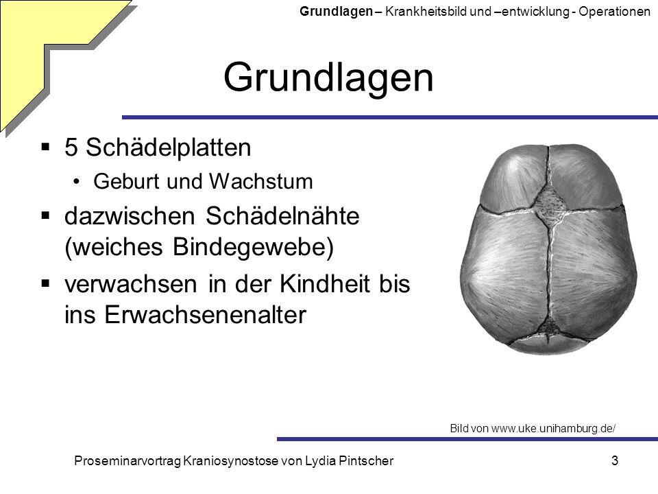 Proseminarvortrag Kraniosynostose von Lydia Pintscher3 Grundlagen 5 Schädelplatten Geburt und Wachstum dazwischen Schädelnähte (weiches Bindegewebe) v