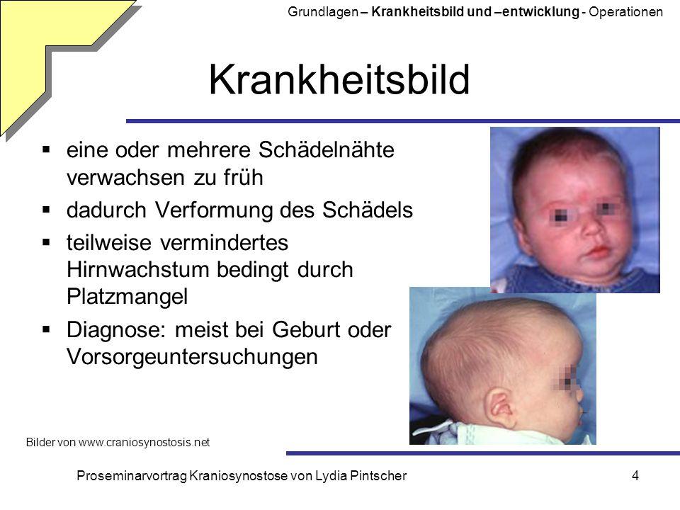 Proseminarvortrag Kraniosynostose von Lydia Pintscher5 Syndrome Kraniosynostose syndromal tritt immer auf tritt nicht immer auf nicht syndromal Grundlagen – Krankheitsbild und –entwicklung - Operationen