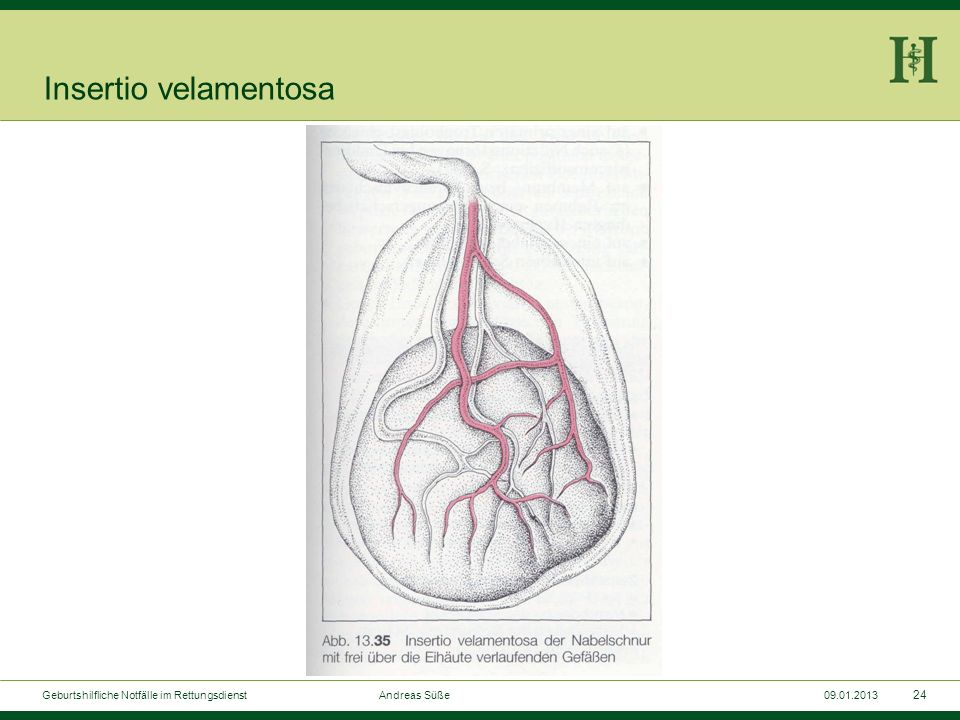 23 Geburtshilfliche Notfälle im Rettungsdienst Andreas Süße09.01.2013 Blutung bei Insertio velamentosa Aufteilen der Nabelschnurgefäße bereits vor Err