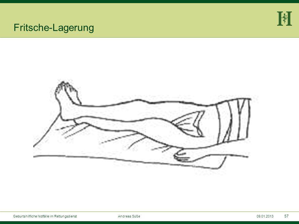 56 Geburtshilfliche Notfälle im Rettungsdienst Andreas Süße09.01.2013 Plazentalösungszeichen nach KÜSTNER
