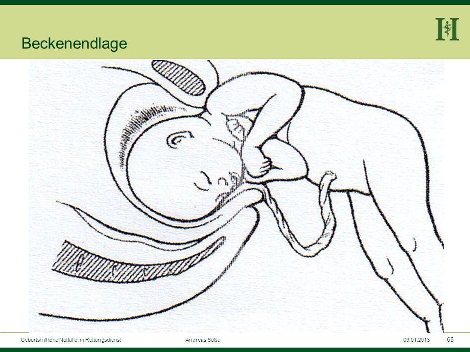 64 Geburtshilfliche Notfälle im Rettungsdienst Andreas Süße09.01.2013 Beckenendlage Kopf mit größtem Durchmesser muss zum Schluss durch den Geburtskan