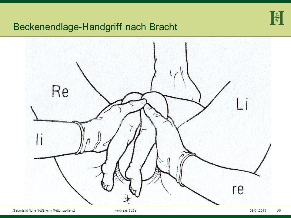 65 Geburtshilfliche Notfälle im Rettungsdienst Andreas Süße09.01.2013 Beckenendlage