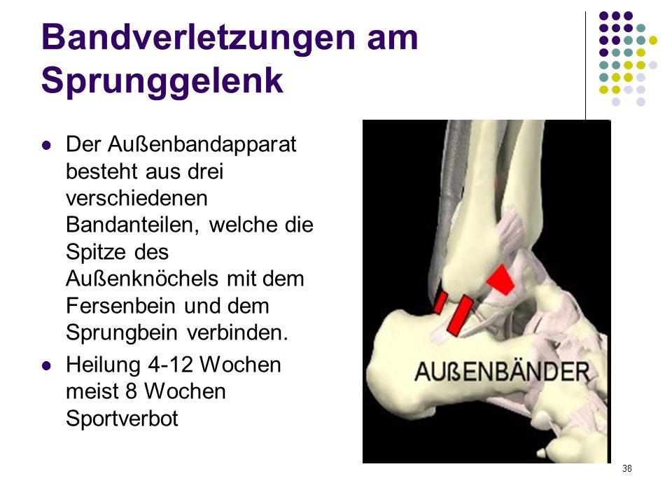 38 Bandverletzungen am Sprunggelenk Der Außenbandapparat besteht aus drei verschiedenen Bandanteilen, welche die Spitze des Außenknöchels mit dem Fers