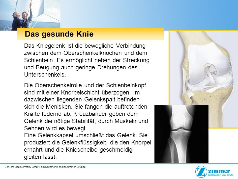 Centerpulse Germany GmbH, ein Unternehmen der Zimmer-Gruppe Das gesunde Knie Das Kniegelenk ist die bewegliche Verbindung zwischen dem Oberschenkelknochen und dem Schienbein.