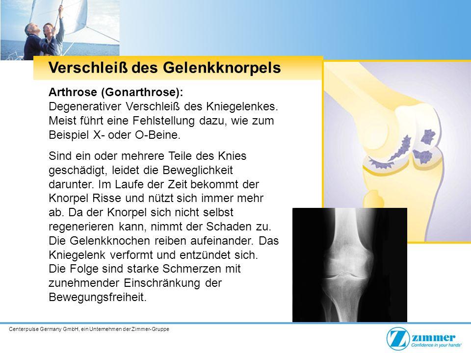 Centerpulse Germany GmbH, ein Unternehmen der Zimmer-Gruppe Verschleiß des Gelenkknorpels Arthrose (Gonarthrose): Degenerativer Verschleiß des Kniegelenkes.