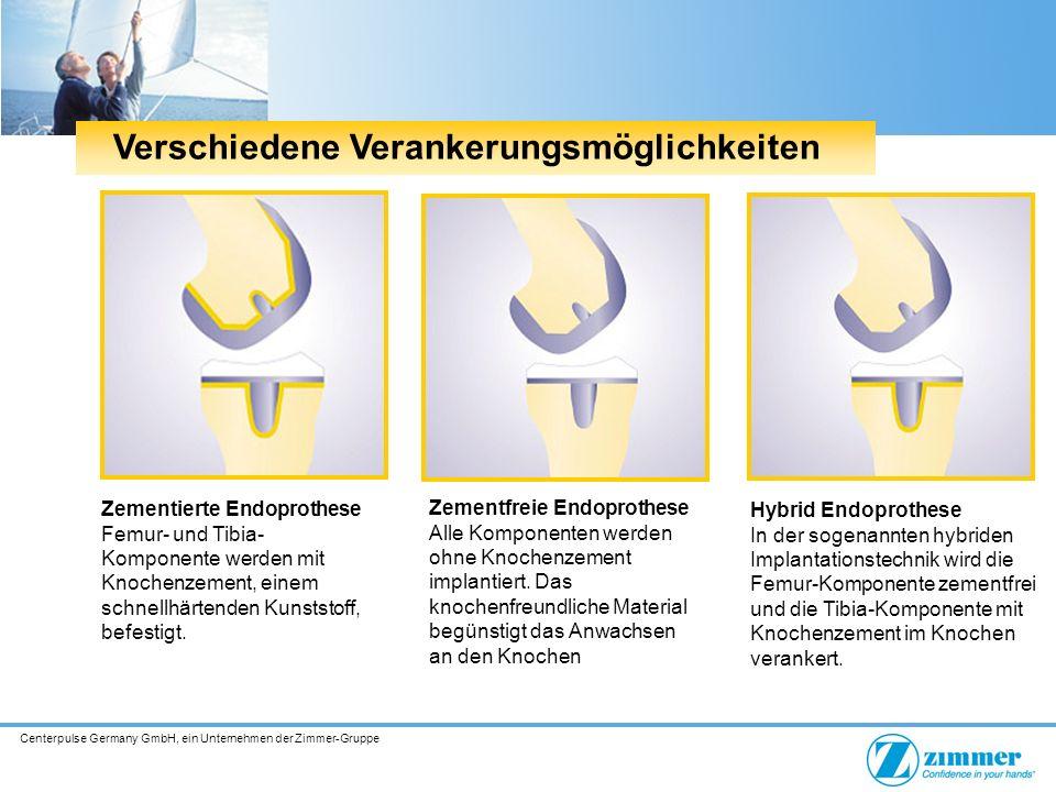 Centerpulse Germany GmbH, ein Unternehmen der Zimmer-Gruppe Verschiedene Verankerungsmöglichkeiten Zementierte Endoprothese Femur- und Tibia- Komponente werden mit Knochenzement, einem schnellhärtenden Kunststoff, befestigt.