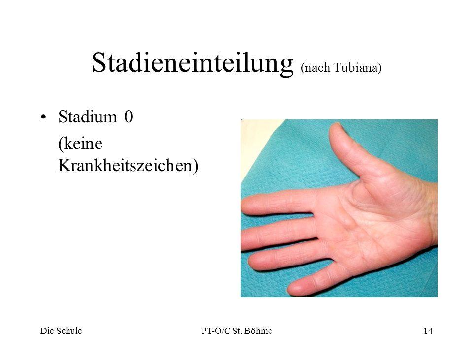 Stadieneinteilung (nach Tubiana) Stadium 0 (keine Krankheitszeichen) Die SchulePT-O/C St. Böhme14