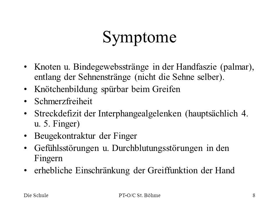 Symptome Knoten u. Bindegewebsstränge in der Handfaszie (palmar), entlang der Sehnenstränge (nicht die Sehne selber). Knötchenbildung spürbar beim Gre