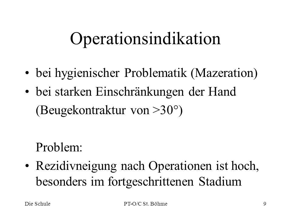 Operationsindikation bei hygienischer Problematik (Mazeration) bei starken Einschränkungen der Hand (Beugekontraktur von >30°) Problem: Rezidivneigung