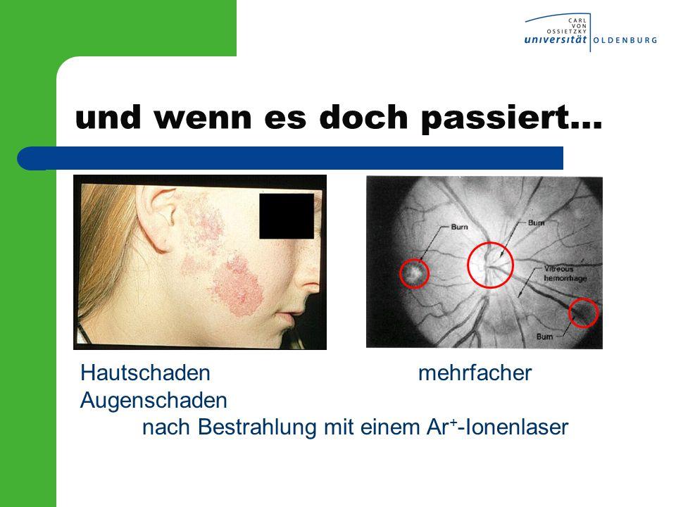 und wenn es doch passiert... Hautschaden mehrfacher Augenschaden nach Bestrahlung mit einem Ar + -Ionenlaser